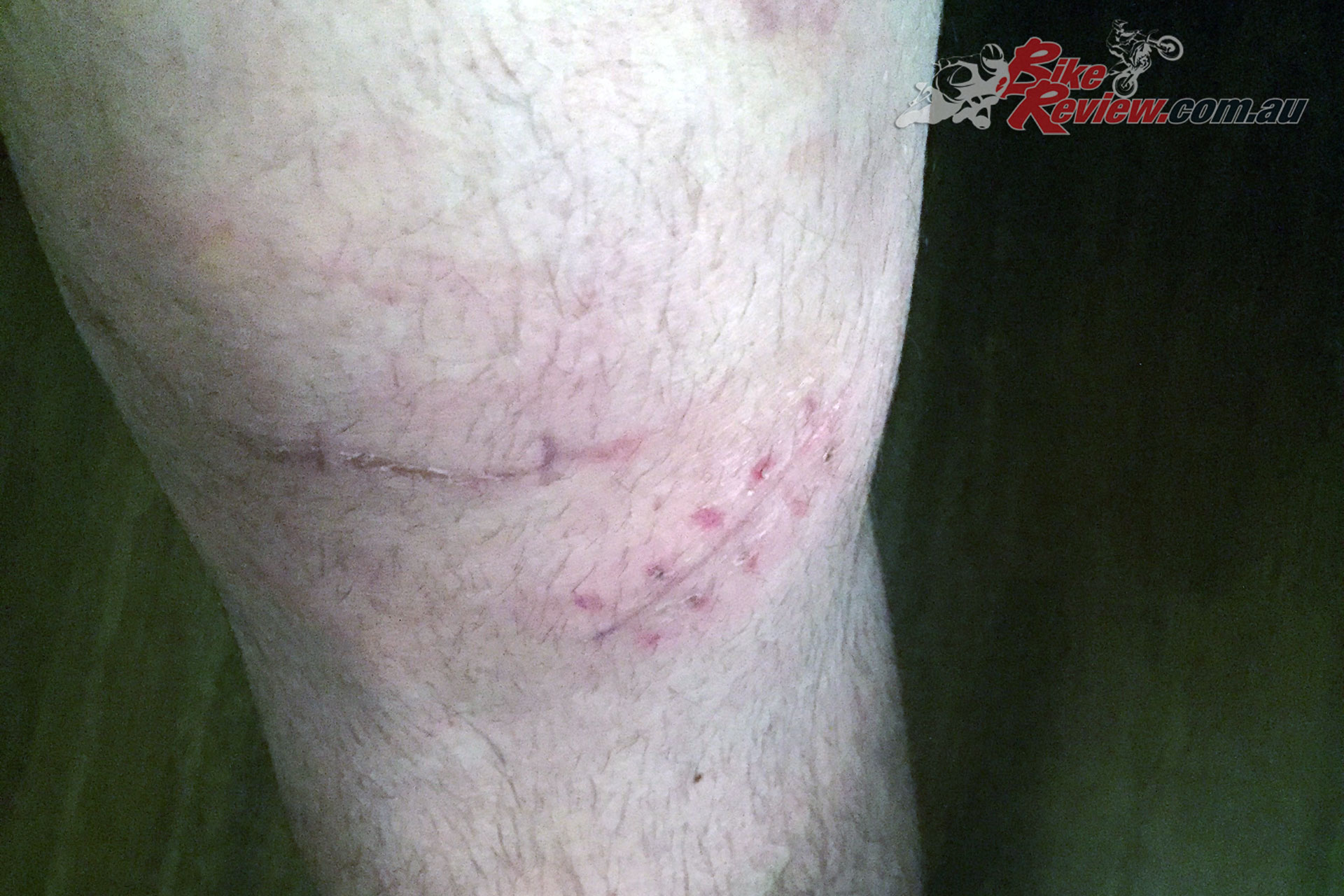 Jeff did a number on his leg during an off-road bike launch - here's the scars.